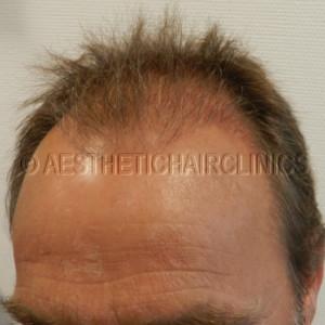 Haartransplantatie ervaringen