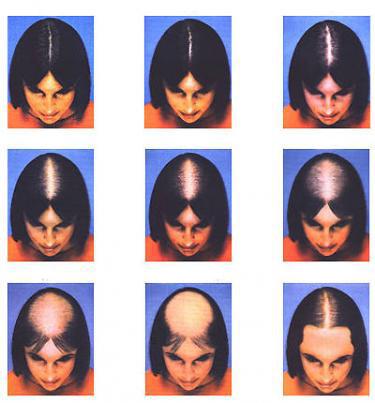 haartransplantatie bij vrouwen