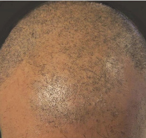 Micro Hair Pigmentation