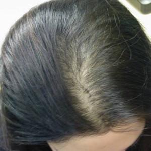 haartransplantatie vrouwen