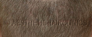 Haartransplantatie na 17