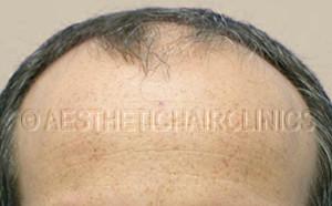 Haartransplantatie voor 15