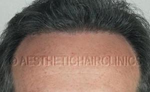 Haartransplantatie na 15