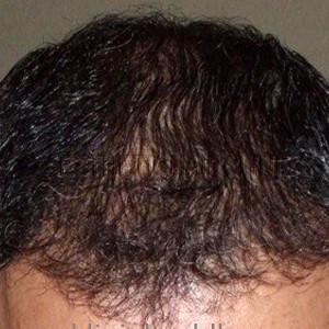 Haartransplantatie na 9